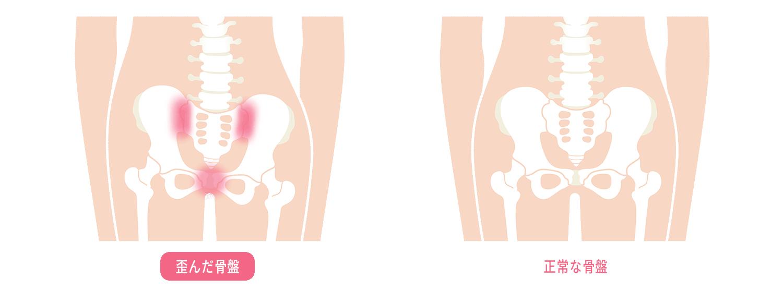 歪んだ骨盤と正常な骨盤